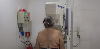 mamografias,